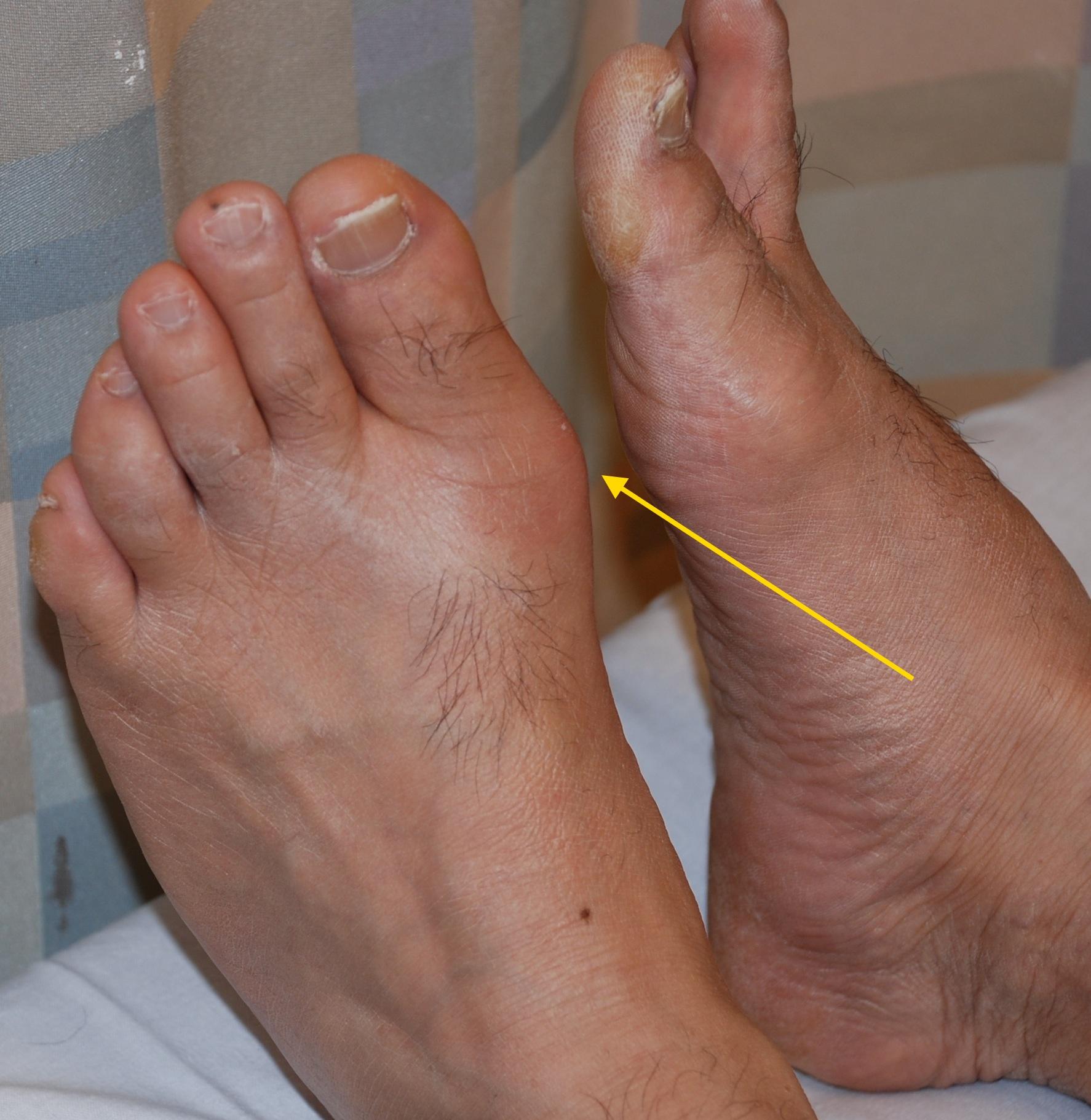 Народная медицина артрит и подагра фото