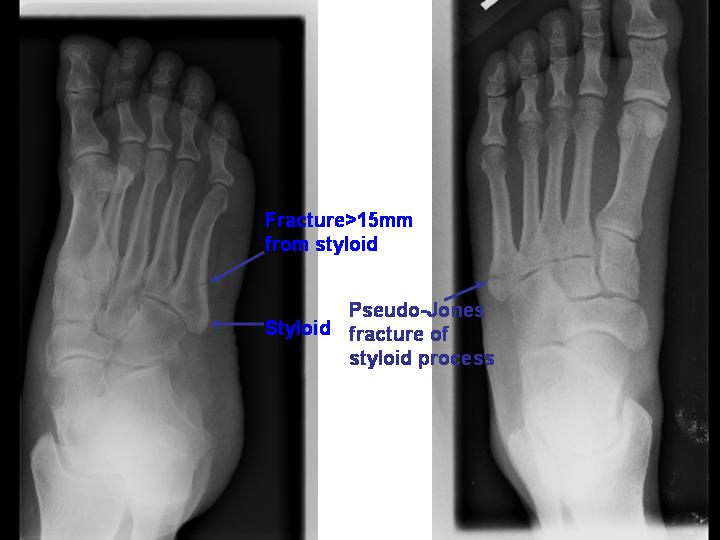 5th metatarsal styloid process related keywords 5th