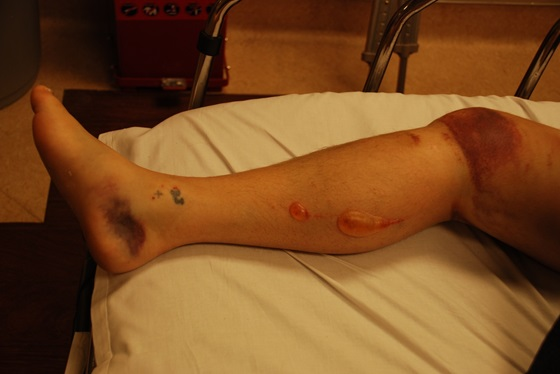 BlistersAssociatedWithLower-ExtremityFracture:Results of a ...